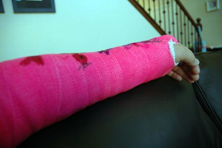 Full arm cast